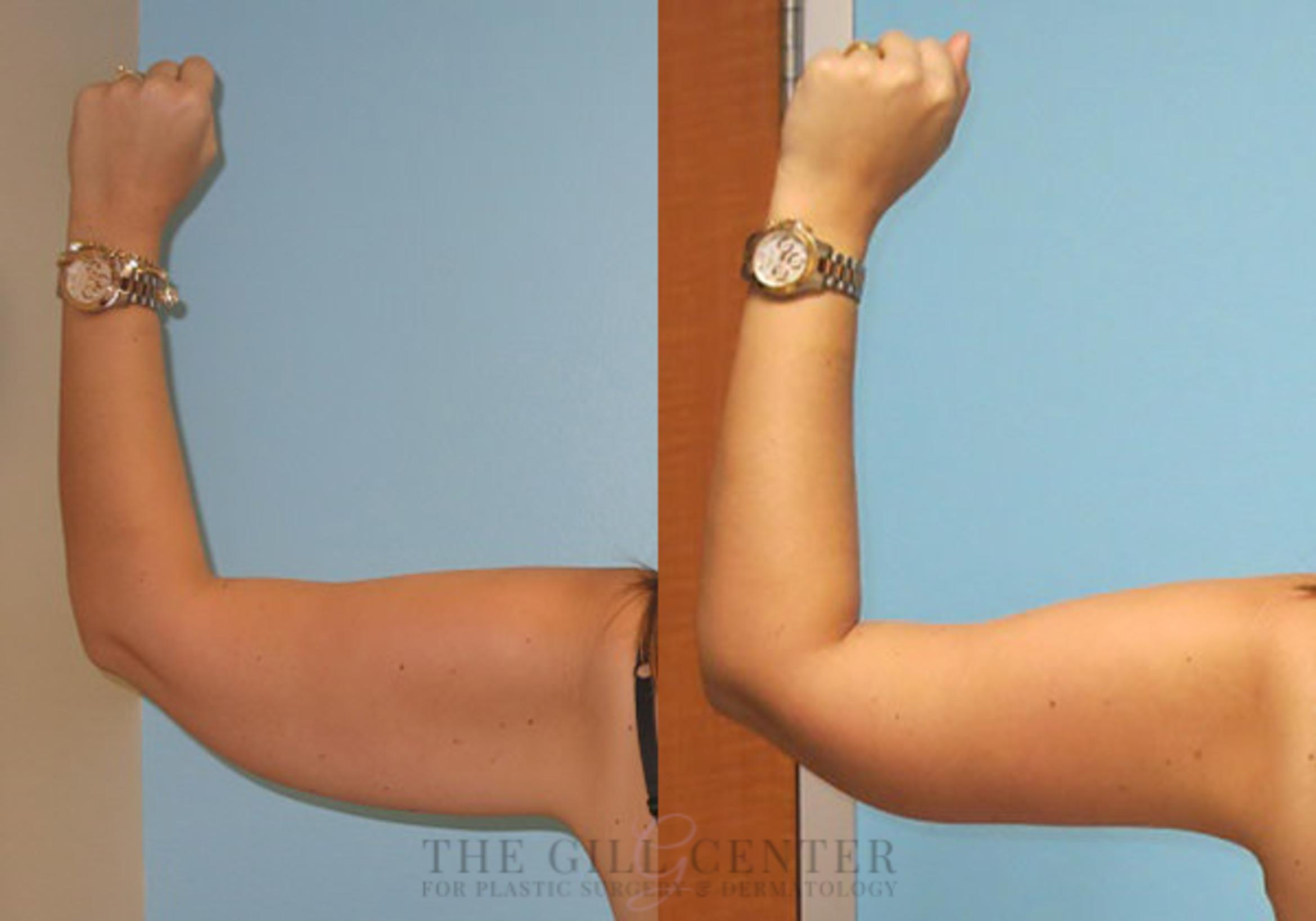 Arm Lift Case 12 Before & After Back | Shenandoah, TX | The Gill Center for Plastic Surgery and Dermatology