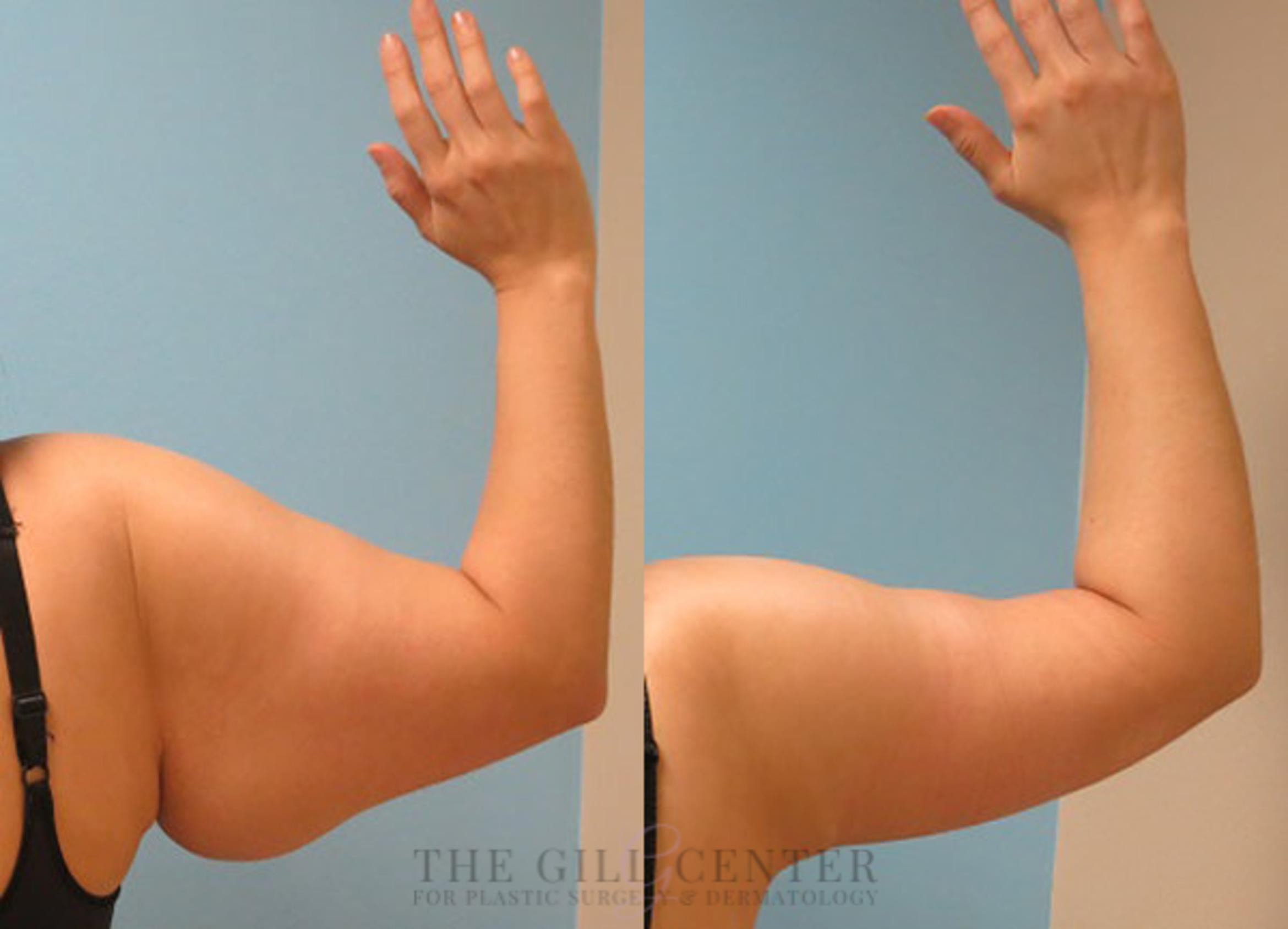 Arm Lift Case 14 Before & After Back | Shenandoah, TX | The Gill Center for Plastic Surgery and Dermatology