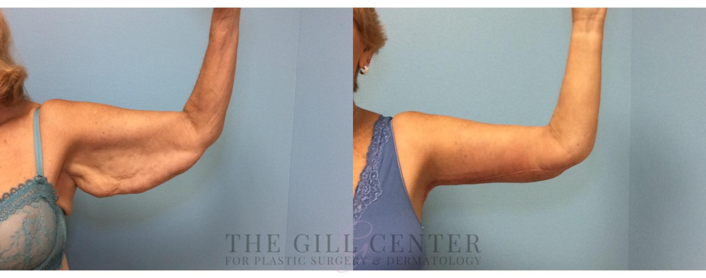 Arm Lift Case 4 Before & After Front | Shenandoah, TX | The Gill Center for Plastic Surgery and Dermatology
