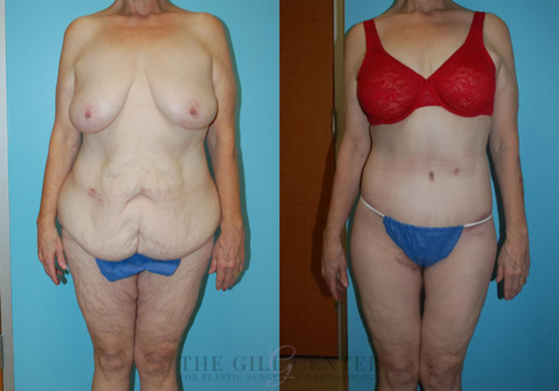Body Lift Case 346 Before & After Front | Shenandoah, TX | The Gill Center for Plastic Surgery and Dermatology