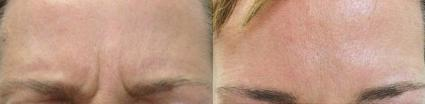 BOTOX® Cosmetic Case 18 Before & After Front | Shenandoah, TX | The Gill Center for Plastic Surgery and Dermatology