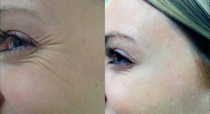 BOTOX® Cosmetic Case 19 Before & After Left Side | Shenandoah, TX | The Gill Center for Plastic Surgery and Dermatology