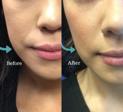 BOTOX® Cosmetic Case 20 Before & After Front | Shenandoah, TX | The Gill Center for Plastic Surgery and Dermatology