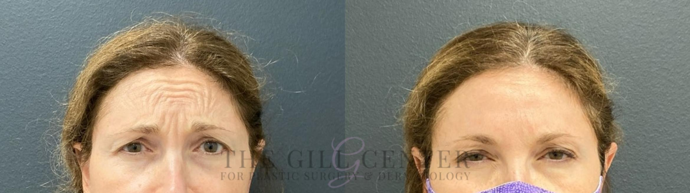 BOTOX® Cosmetic Case 478 Before & After Front | The Woodlands, TX | The Gill Center for Plastic Surgery and Dermatology