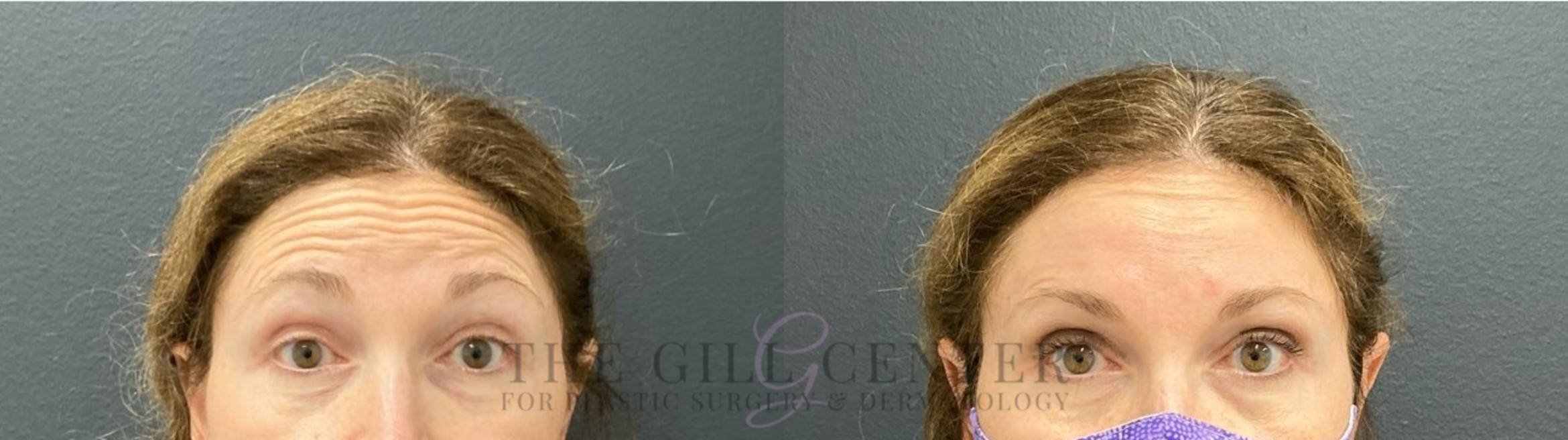 BOTOX® Cosmetic Case 479 Before & After Front | The Woodlands, TX | The Gill Center for Plastic Surgery and Dermatology