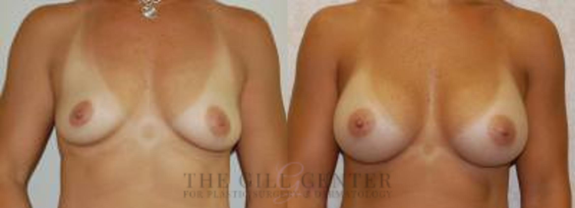 Breast Augmentation Case 36 Before & After Front | Shenandoah, TX | The Gill Center for Plastic Surgery and Dermatology
