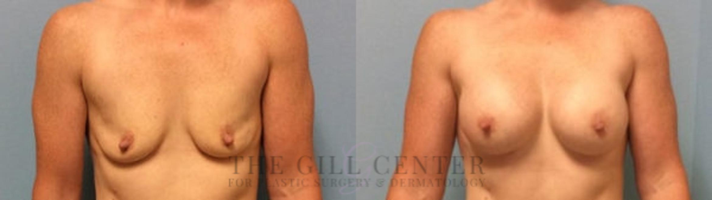 Breast Augmentation Case 431 Before & After Front | Shenandoah, TX | The Gill Center for Plastic Surgery and Dermatology