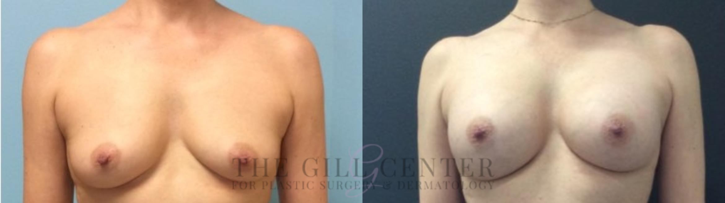 Breast Augmentation Case 437 Before & After Front | Shenandoah, TX | The Gill Center for Plastic Surgery and Dermatology