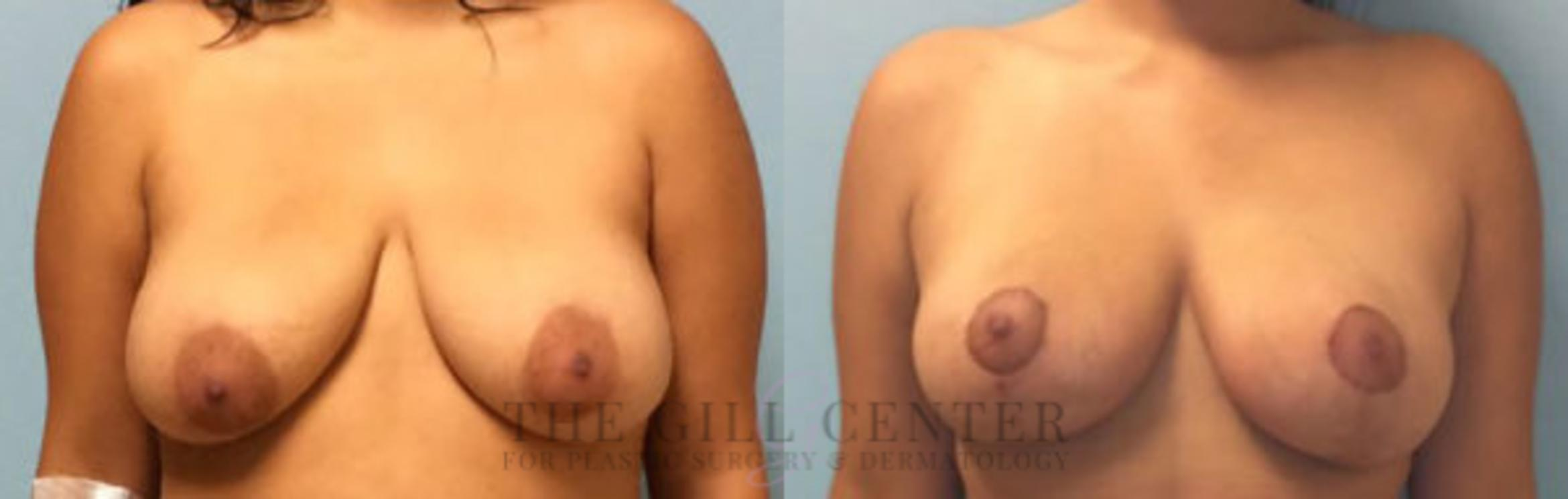 Breast Lift Case 76 Before & After Front | Shenandoah, TX | The Gill Center for Plastic Surgery and Dermatology