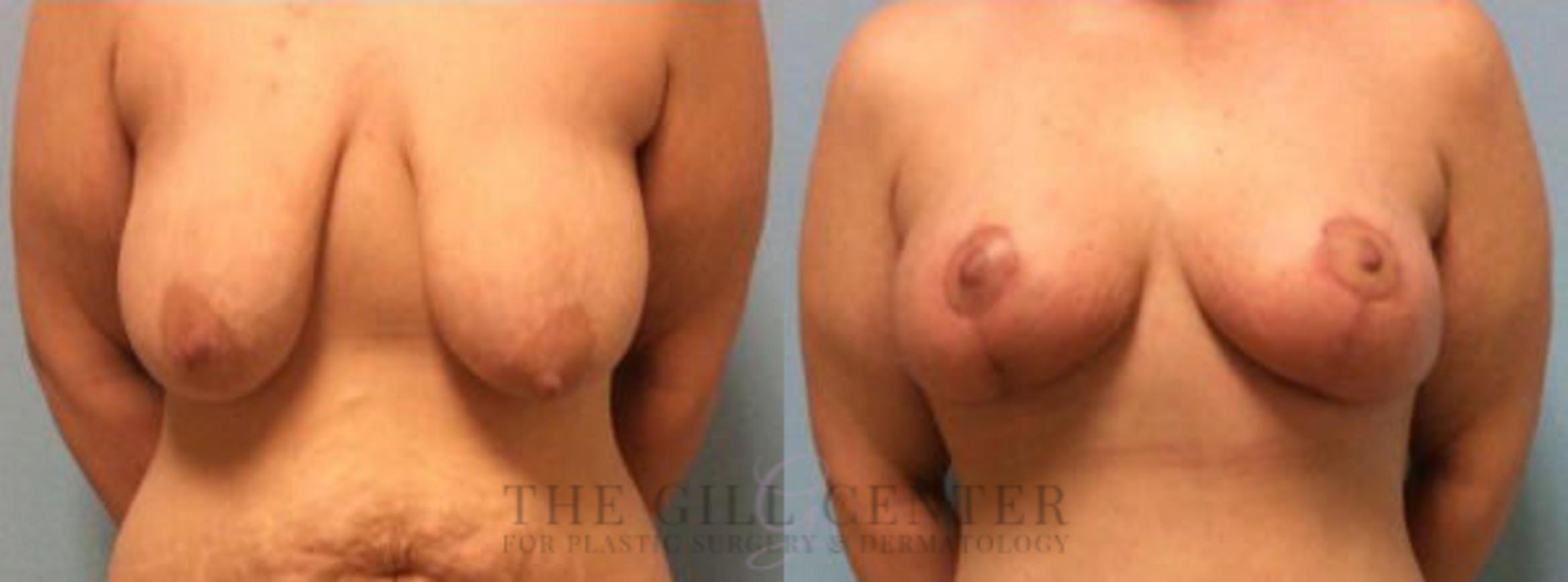 Breast Lift Case 77 Before & After Front | Shenandoah, TX | The Gill Center for Plastic Surgery and Dermatology