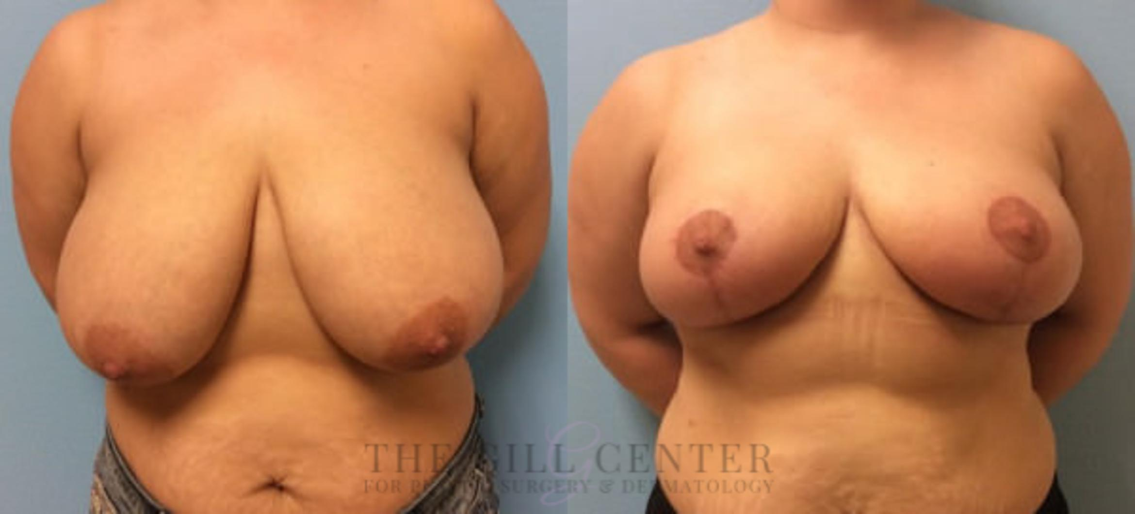 Breast Reduction Case 126 Before & After Front | The Woodlands, TX | The Gill Center for Plastic Surgery and Dermatology
