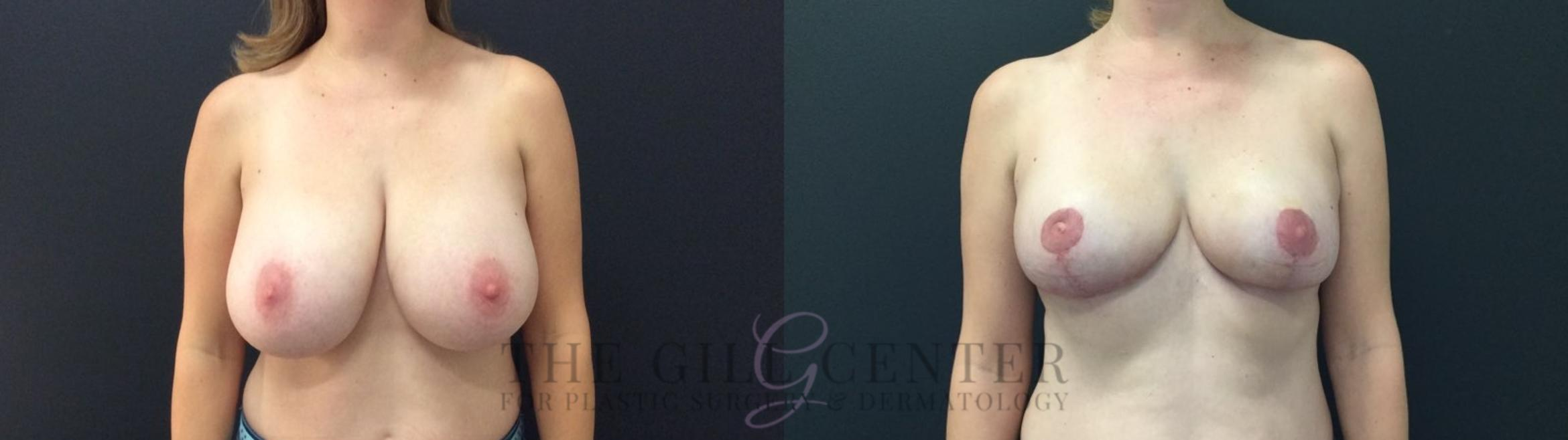 Breast Reduction Case 423 Before & After Front | The Woodlands, TX | The Gill Center for Plastic Surgery and Dermatology