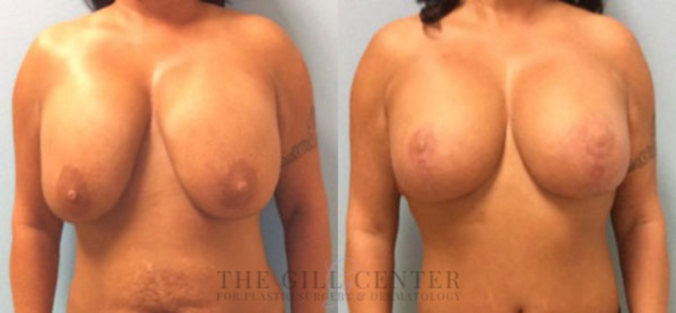 Breast Revision Case 375 Before & After Front | Shenandoah, TX | The Gill Center for Plastic Surgery and Dermatology