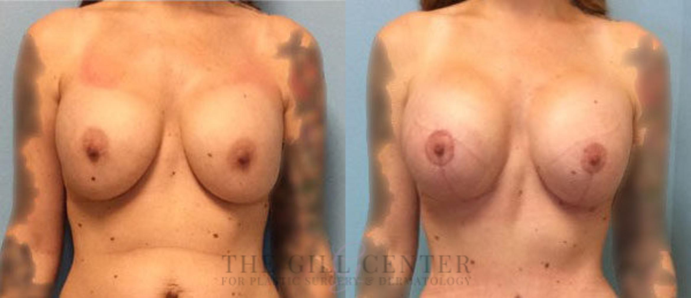 Breast Revision Case 376 Before & After Front | Shenandoah, TX | The Gill Center for Plastic Surgery and Dermatology