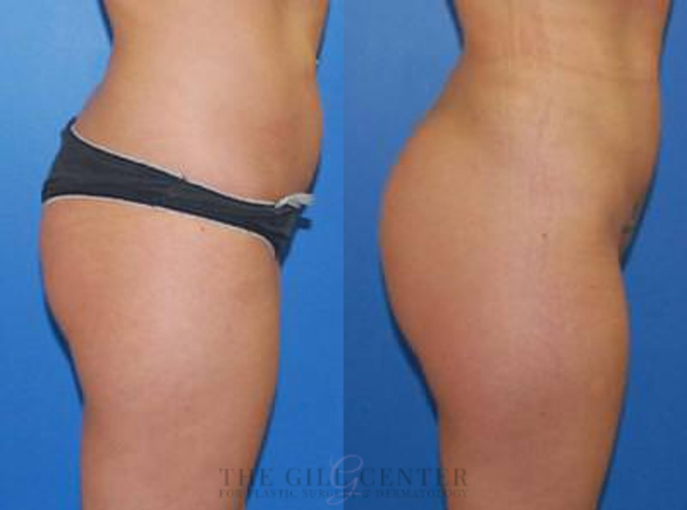 Butt Lift Case 3 Before & After Right Side | Shenandoah, TX | The Gill Center for Plastic Surgery and Dermatology