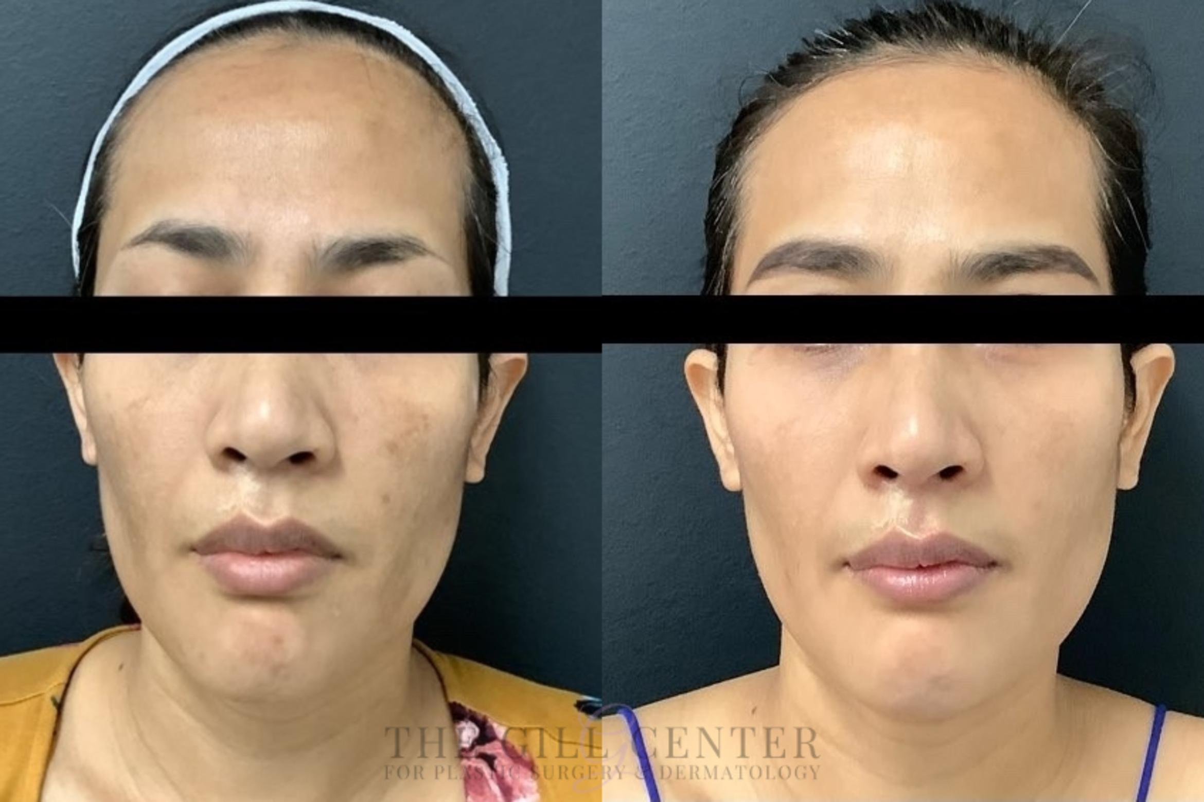 Chemical Peel Case 457 Before & After Front | The Woodlands, TX | The Gill Center for Plastic Surgery and Dermatology