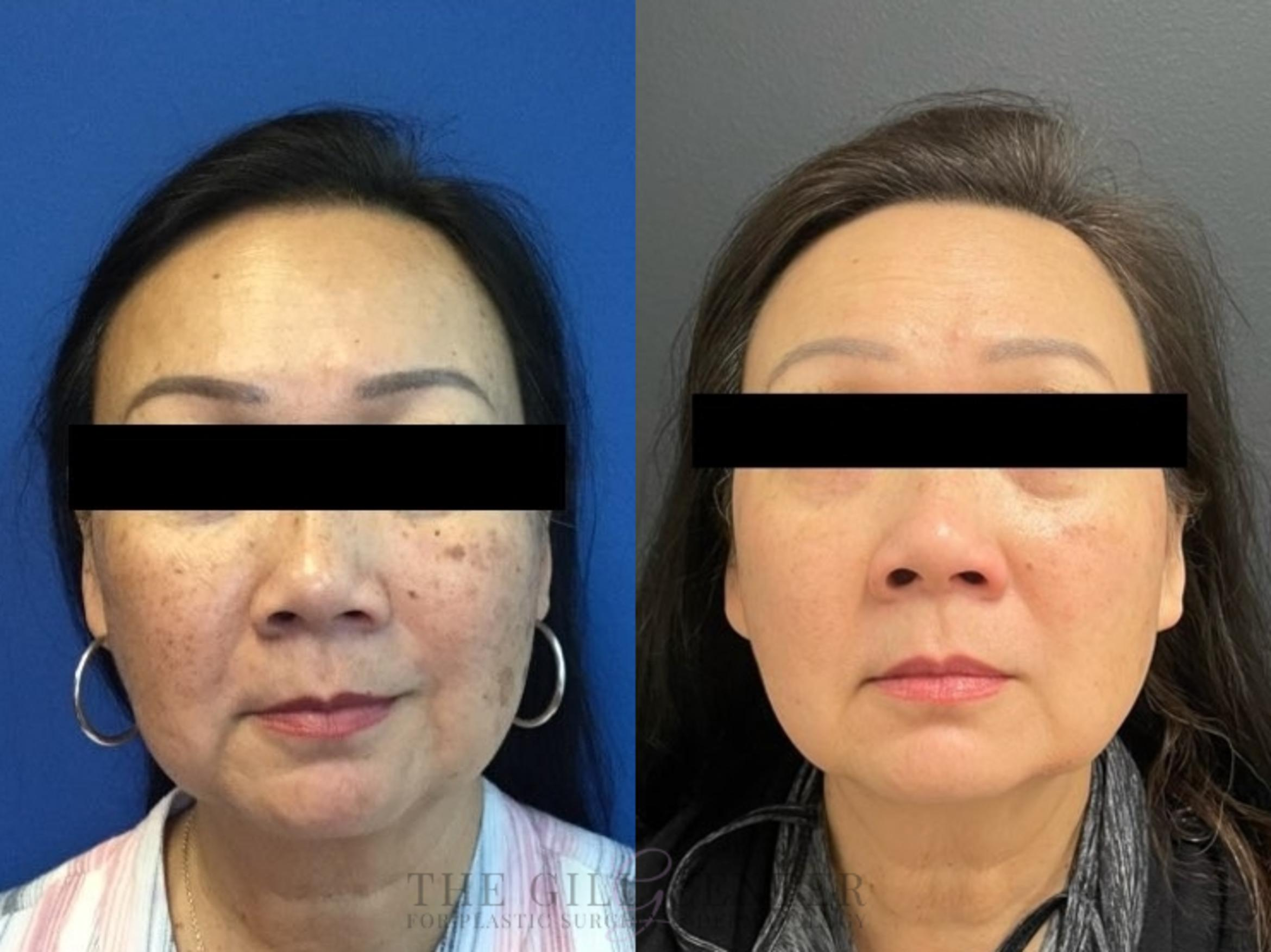 Chemical Peel Case 481 Before & After Front | The Woodlands, TX | The Gill Center for Plastic Surgery and Dermatology