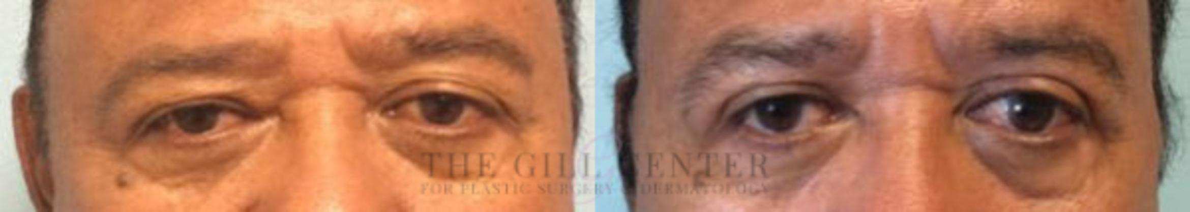 Eyelid Lift Case 147 Before & After Front | Shenandoah, TX | The Gill Center for Plastic Surgery and Dermatology