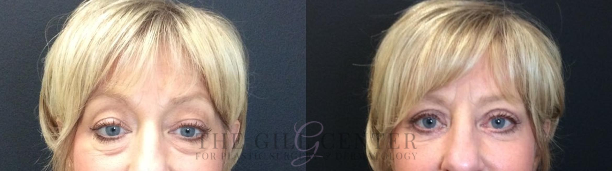 Eyelid Lift Case 432 Before & After Front | Shenandoah, TX | The Gill Center for Plastic Surgery and Dermatology
