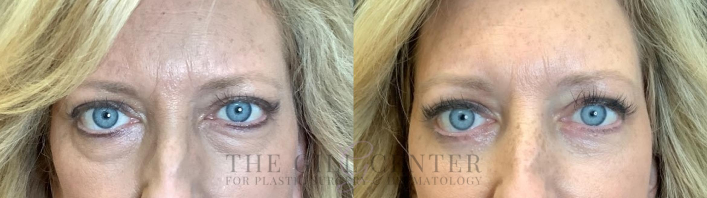 Eyelid Lift Case 464 Before & After Front | Shenandoah, TX | The Gill Center for Plastic Surgery and Dermatology