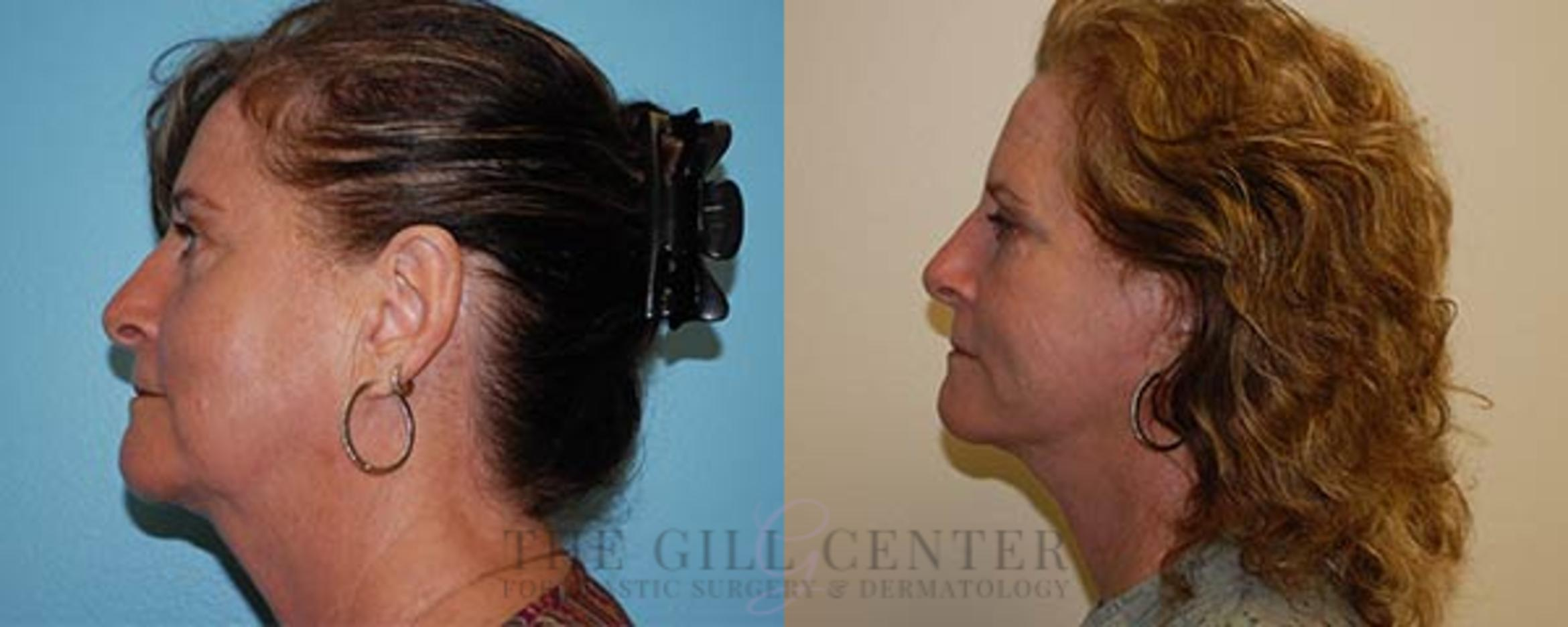 Face & Neck Lift Case 414 Before & After Left Side | Shenandoah, TX | The Gill Center for Plastic Surgery and Dermatology