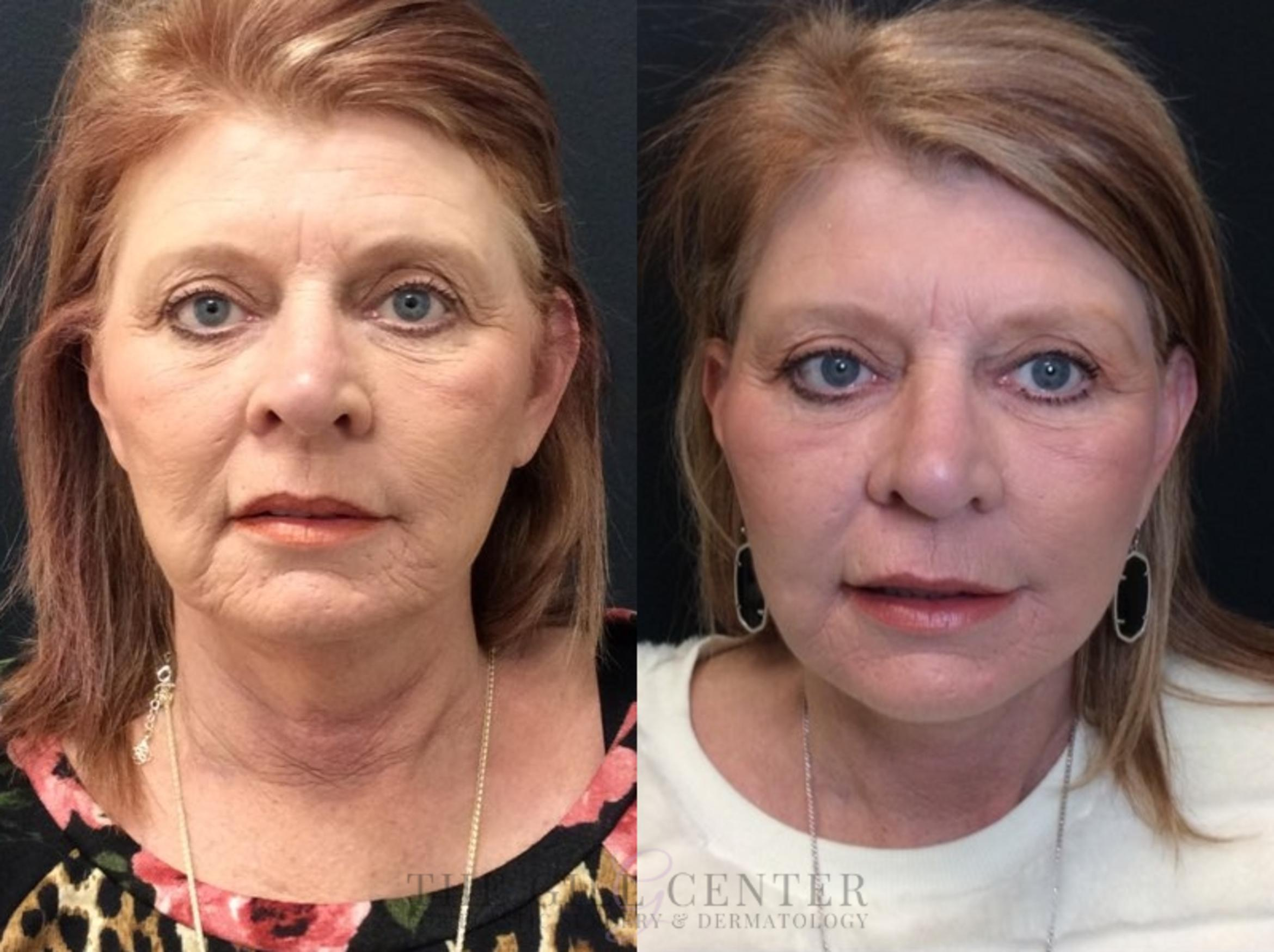 Face & Neck Lift Case 438 Before & After Front | Shenandoah, TX | The Gill Center for Plastic Surgery and Dermatology