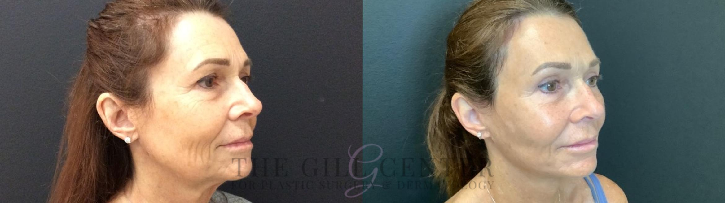 Face & Neck Lift Case 439 Before & After Right Side | Shenandoah, TX | The Gill Center for Plastic Surgery and Dermatology