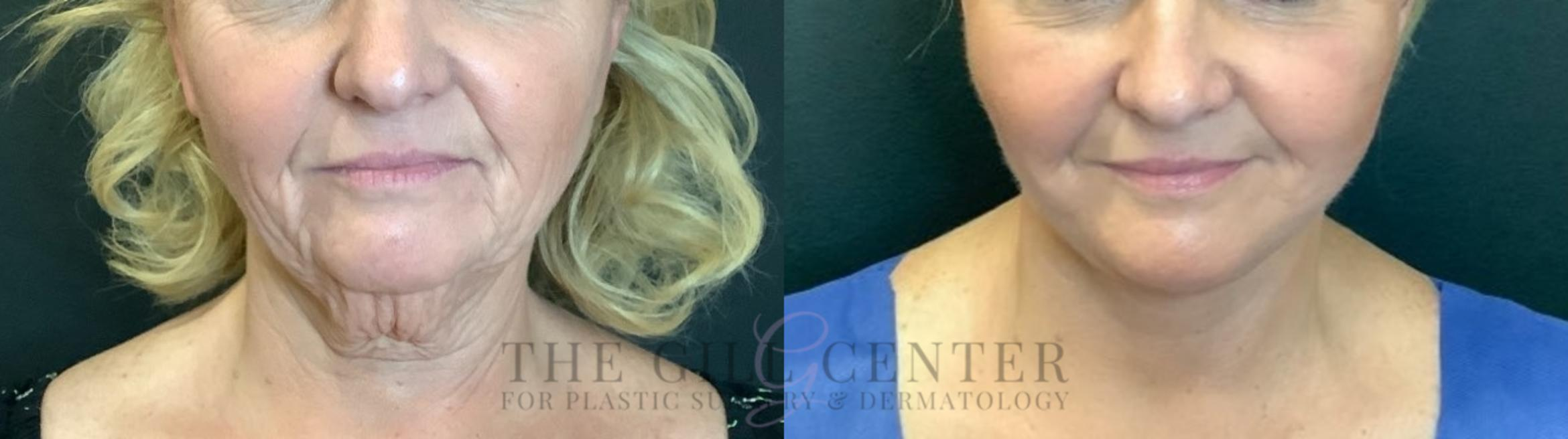 Face & Neck Lift Case 465 Before & After Front | The Woodlands, TX | The Gill Center for Plastic Surgery and Dermatology