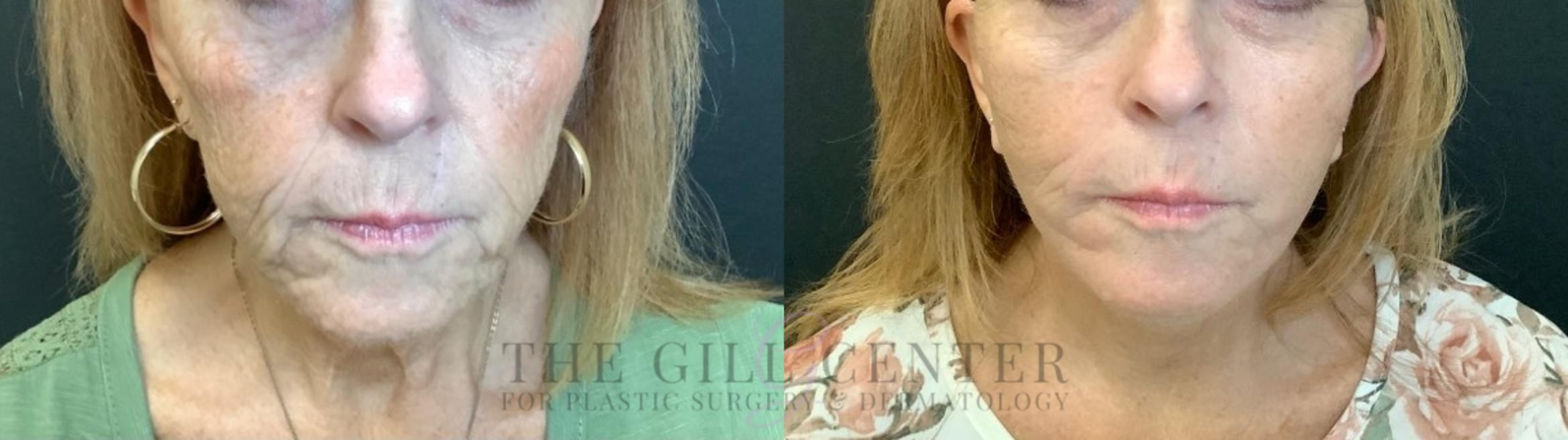 Face & Neck Lift Case 474 Before & After Front | The Woodlands, TX | The Gill Center for Plastic Surgery and Dermatology