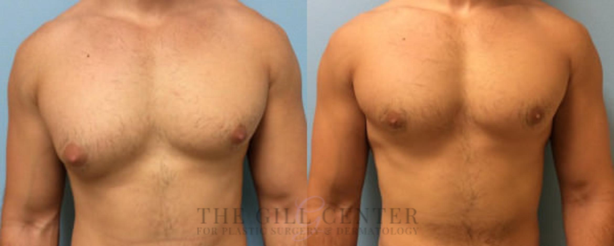 Gynecomastia Case 139 Before & After Front | Shenandoah, TX | The Gill Center for Plastic Surgery and Dermatology