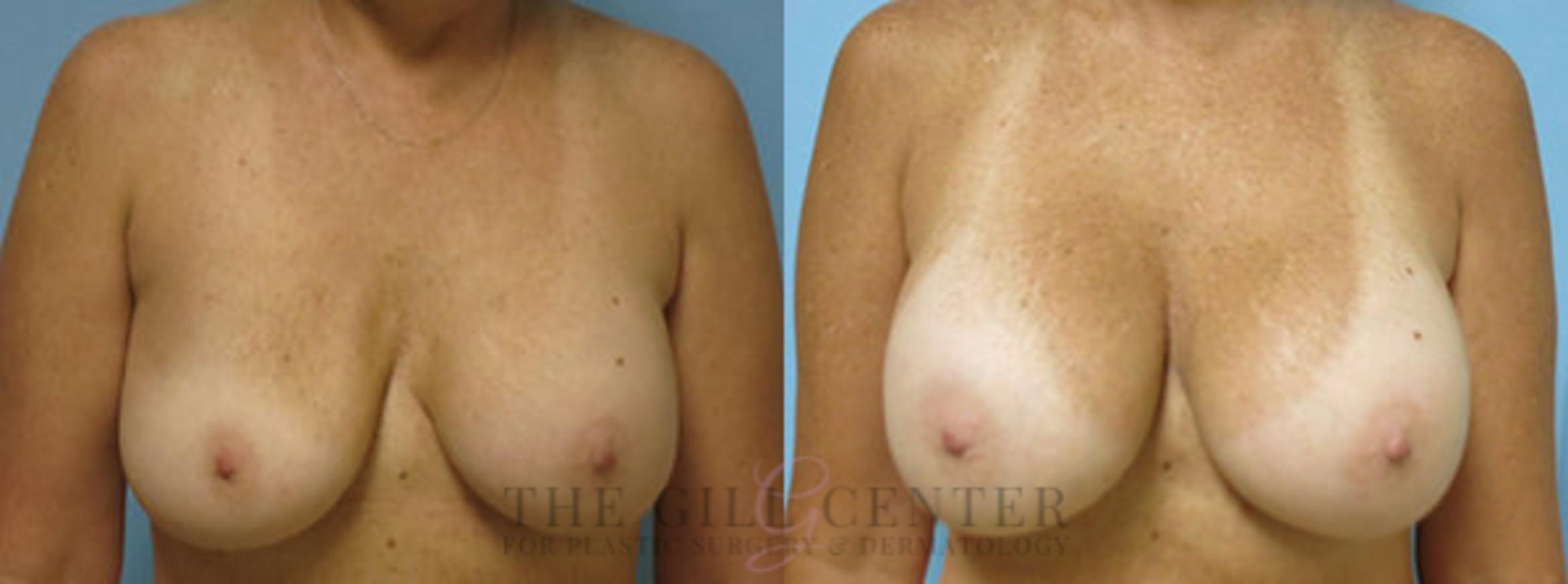 Implant Exchange Case 352 Before & After Front | Shenandoah, TX | The Gill Center for Plastic Surgery and Dermatology