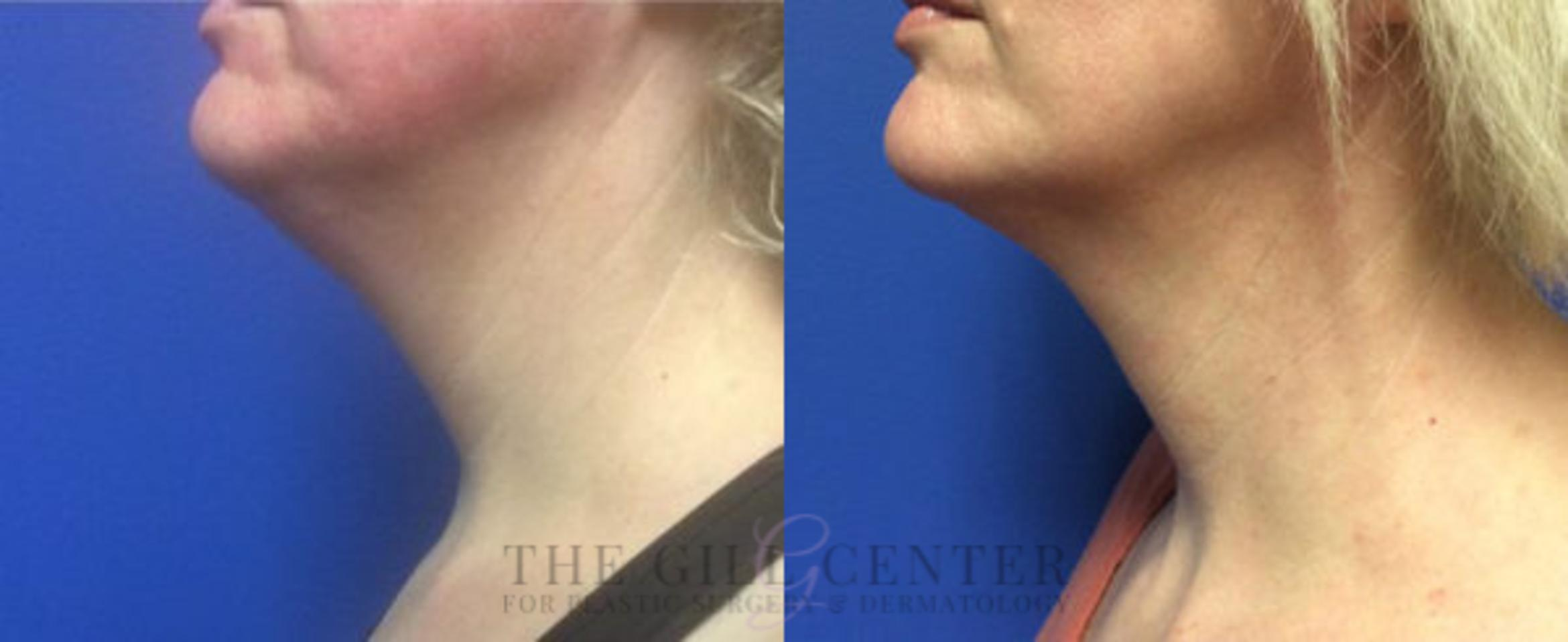 KYBELLA® Case 6 Before & After Left Side | Shenandoah, TX | The Gill Center for Plastic Surgery and Dermatology