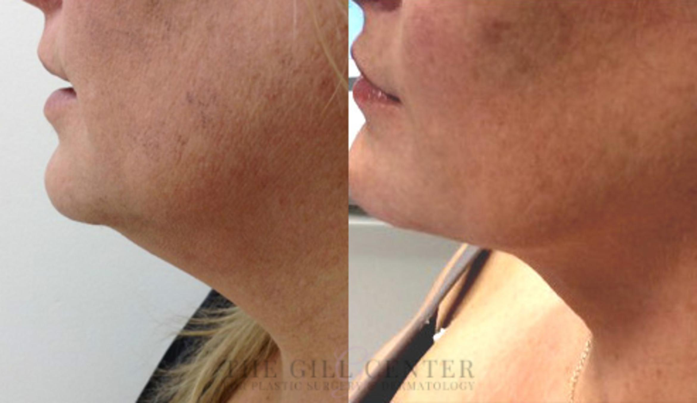 KYBELLA® Case 7 Before & After Left Side | Shenandoah, TX | The Gill Center for Plastic Surgery and Dermatology