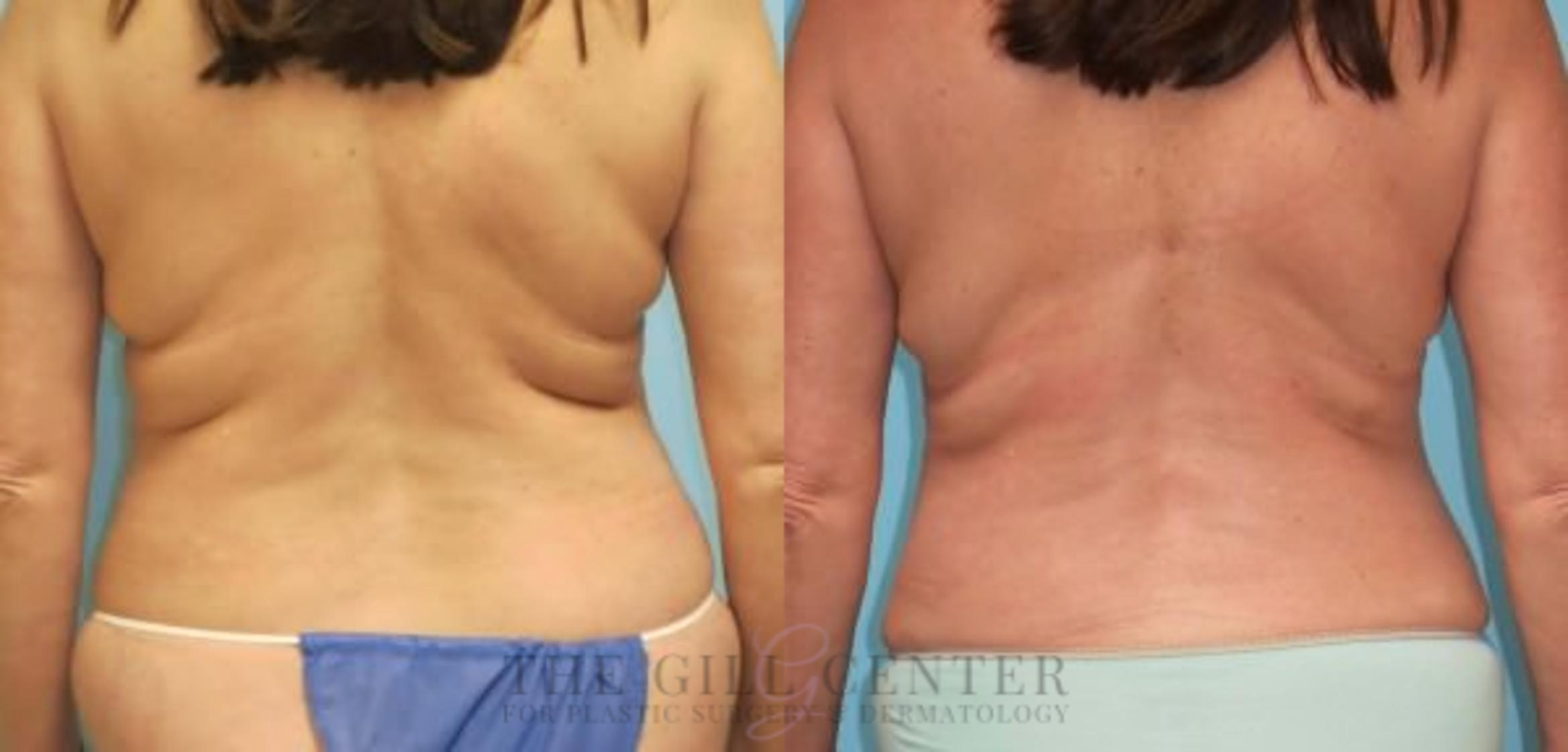 Liposuction Case 157 Before & After Back | Shenandoah, TX | The Gill Center for Plastic Surgery and Dermatology