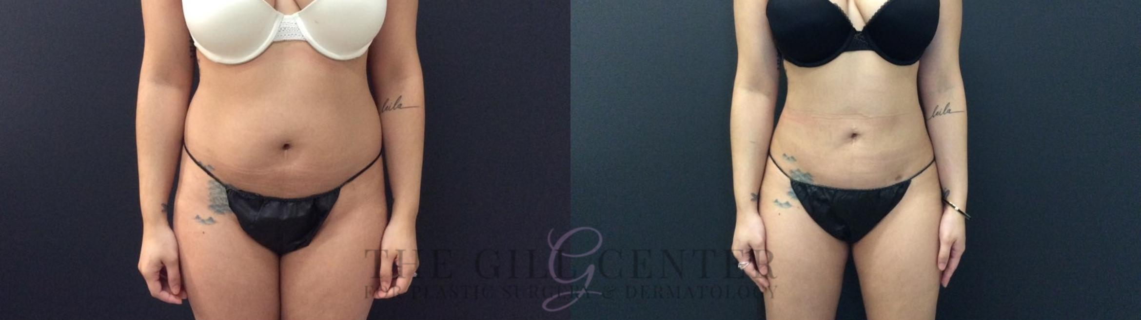 Liposuction Case 422 Before & After Front | Shenandoah, TX | The Gill Center for Plastic Surgery and Dermatology