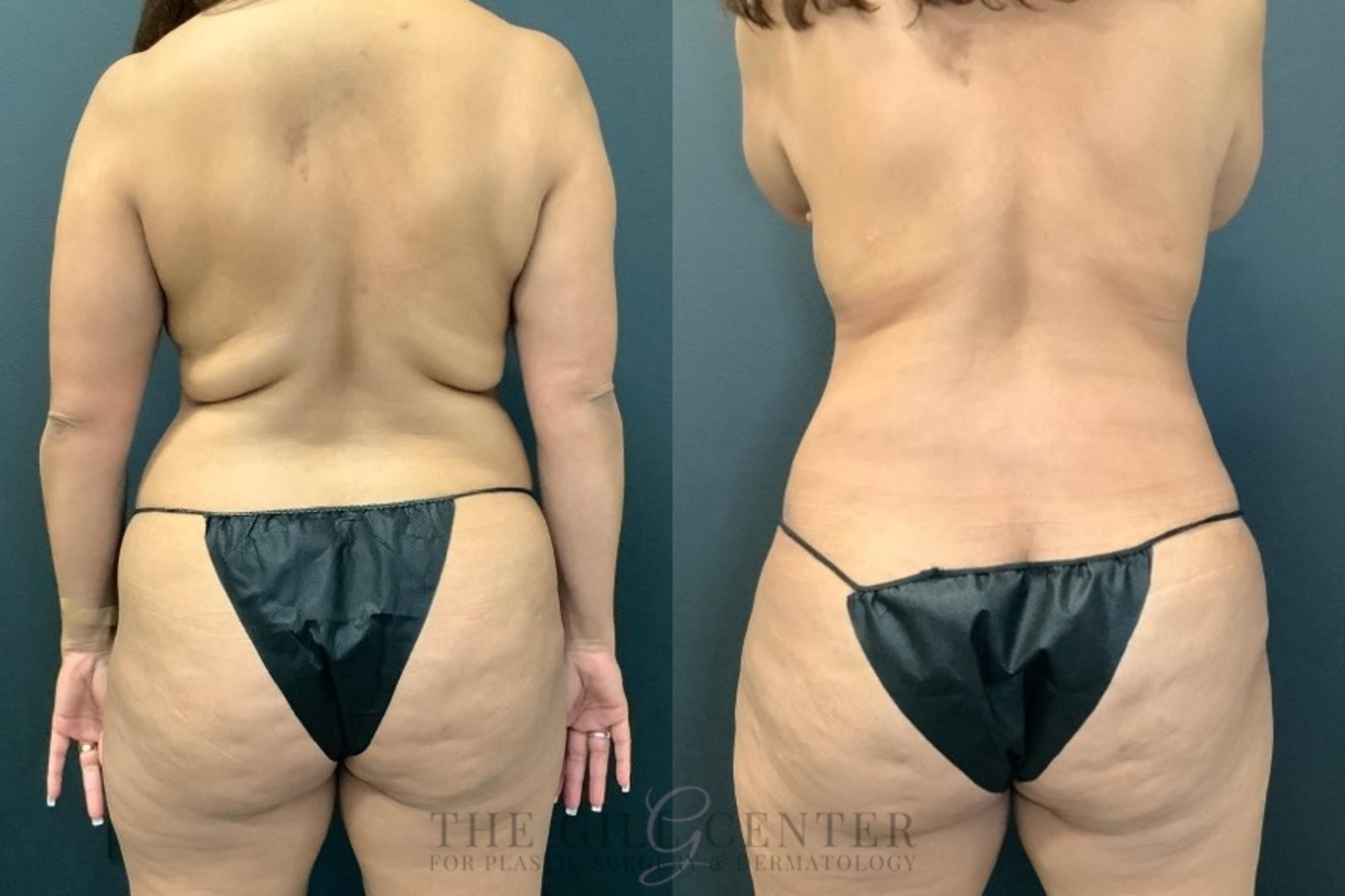 Liposuction Case 493 Before & After Back | The Woodlands, TX | The Gill Center for Plastic Surgery and Dermatology
