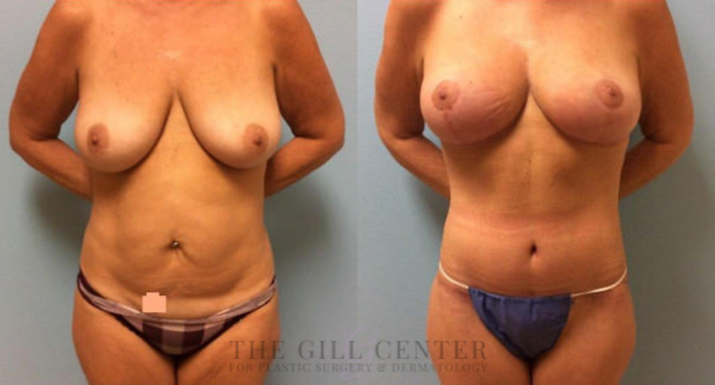 Mommy Makeover Case 307 Before & After Front | Shenandoah, TX | The Gill Center for Plastic Surgery and Dermatology
