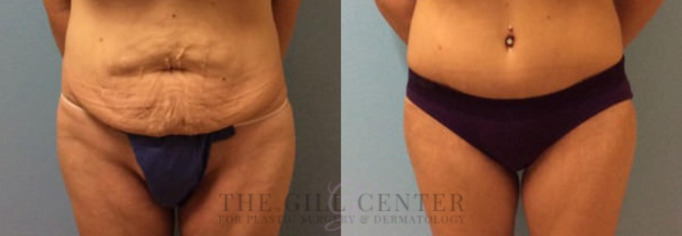 Thigh Lift Case 163 Before & After Front | Shenandoah, TX | The Gill Center for Plastic Surgery and Dermatology