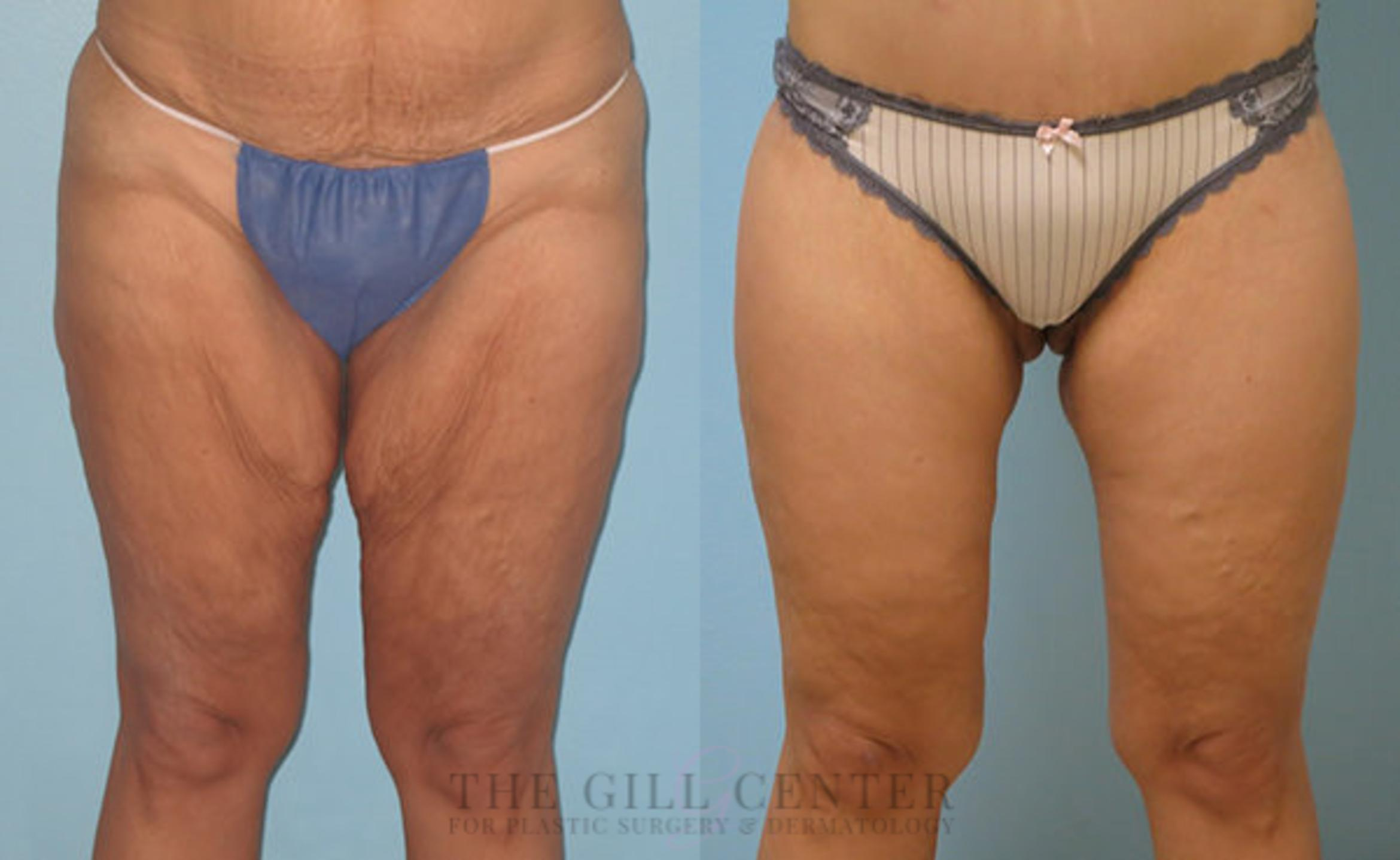 Thigh Lift Case 165 Before & After Front | Shenandoah, TX | The Gill Center for Plastic Surgery and Dermatology