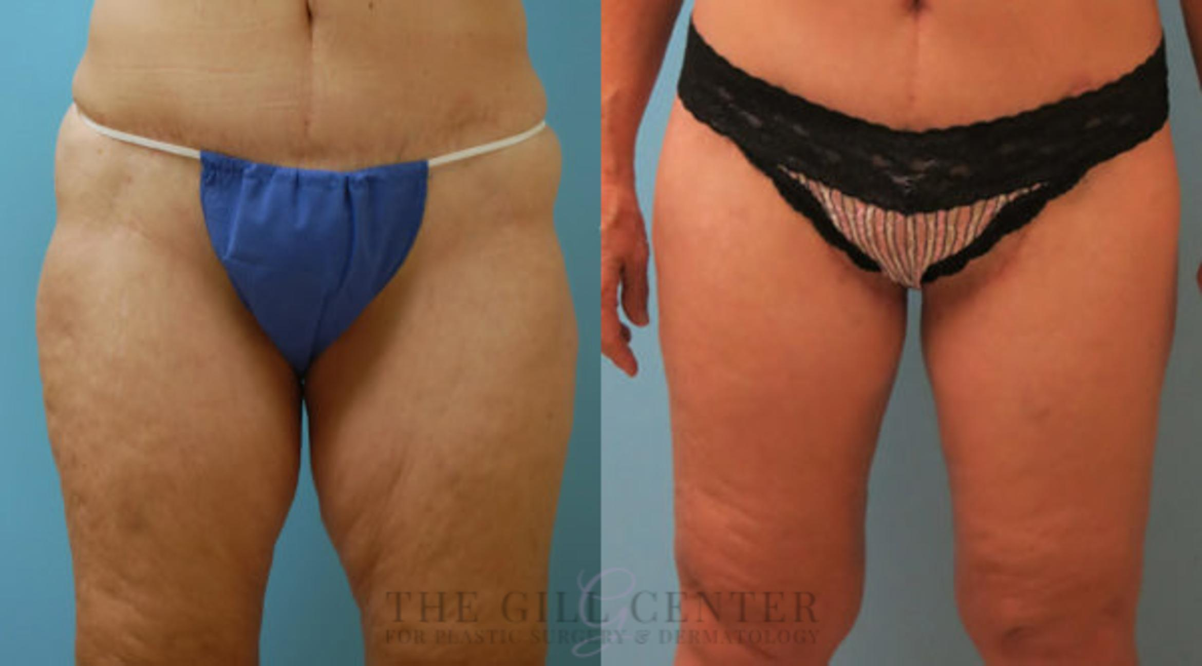 Thigh Lift Case 168 Before & After Front | Shenandoah, TX | The Gill Center for Plastic Surgery and Dermatology