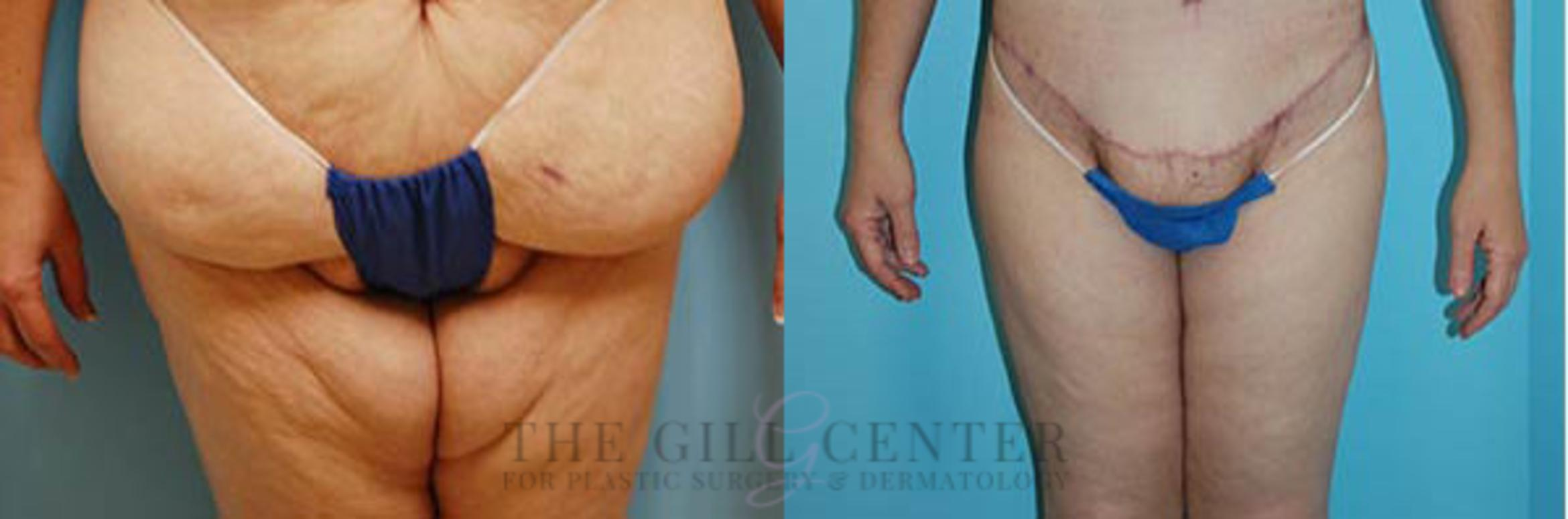 Thigh Lift Case 169 Before & After Front | Shenandoah, TX | The Gill Center for Plastic Surgery and Dermatology