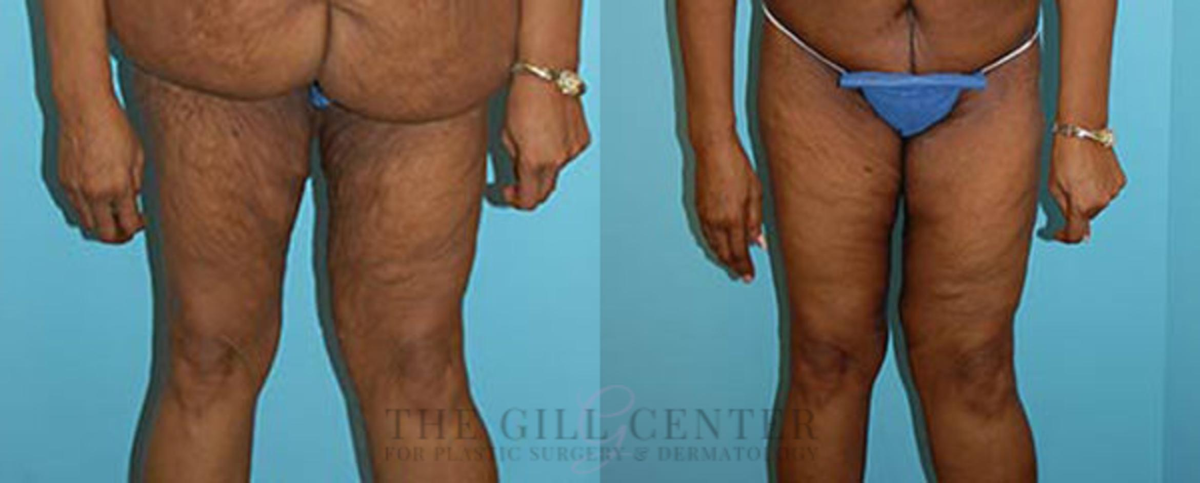Thigh Lift Case 170 Before & After Front | Shenandoah, TX | The Gill Center for Plastic Surgery and Dermatology