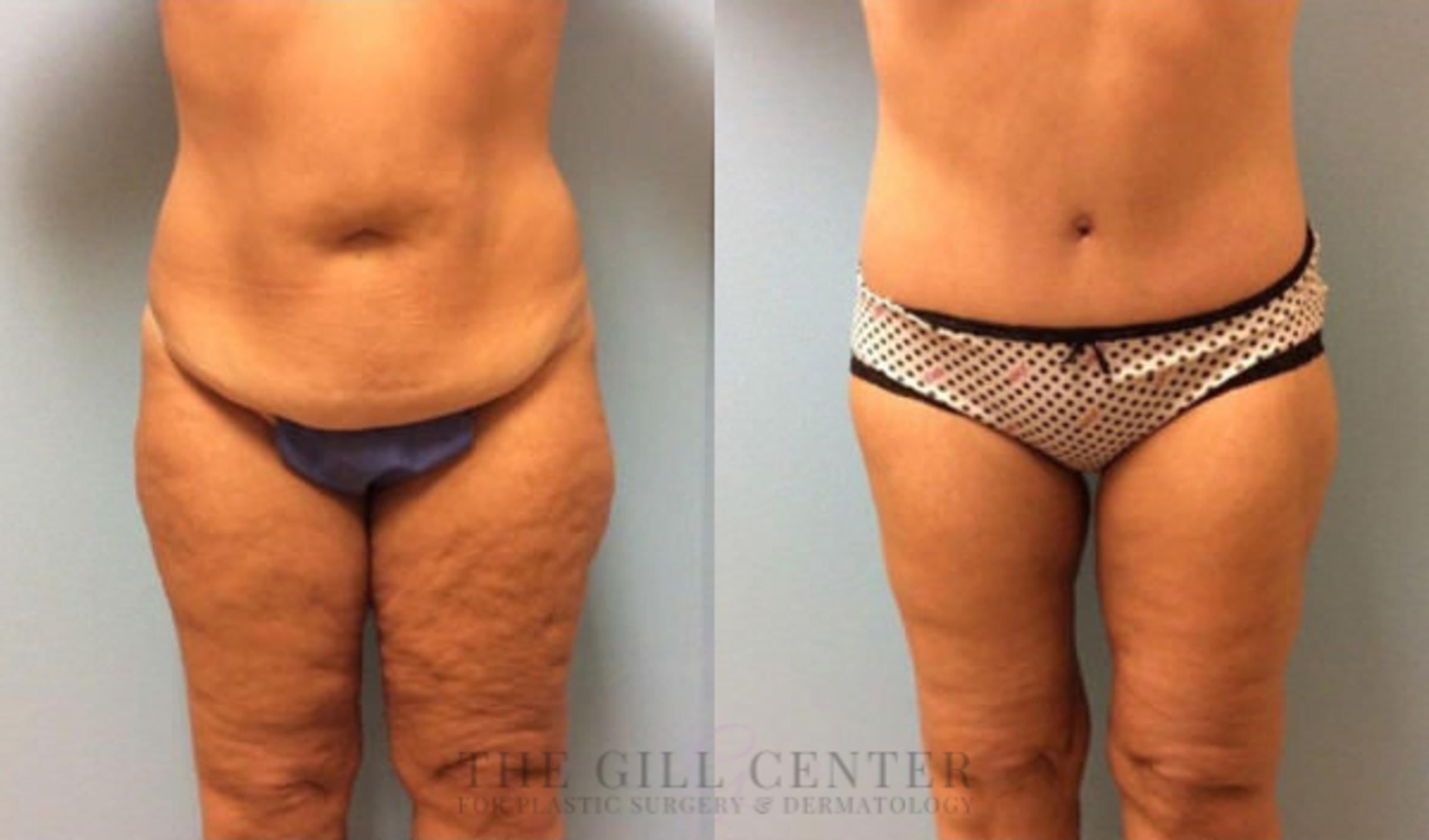 Thigh Lift Case 171 Before & After Front | Shenandoah, TX | The Gill Center for Plastic Surgery and Dermatology