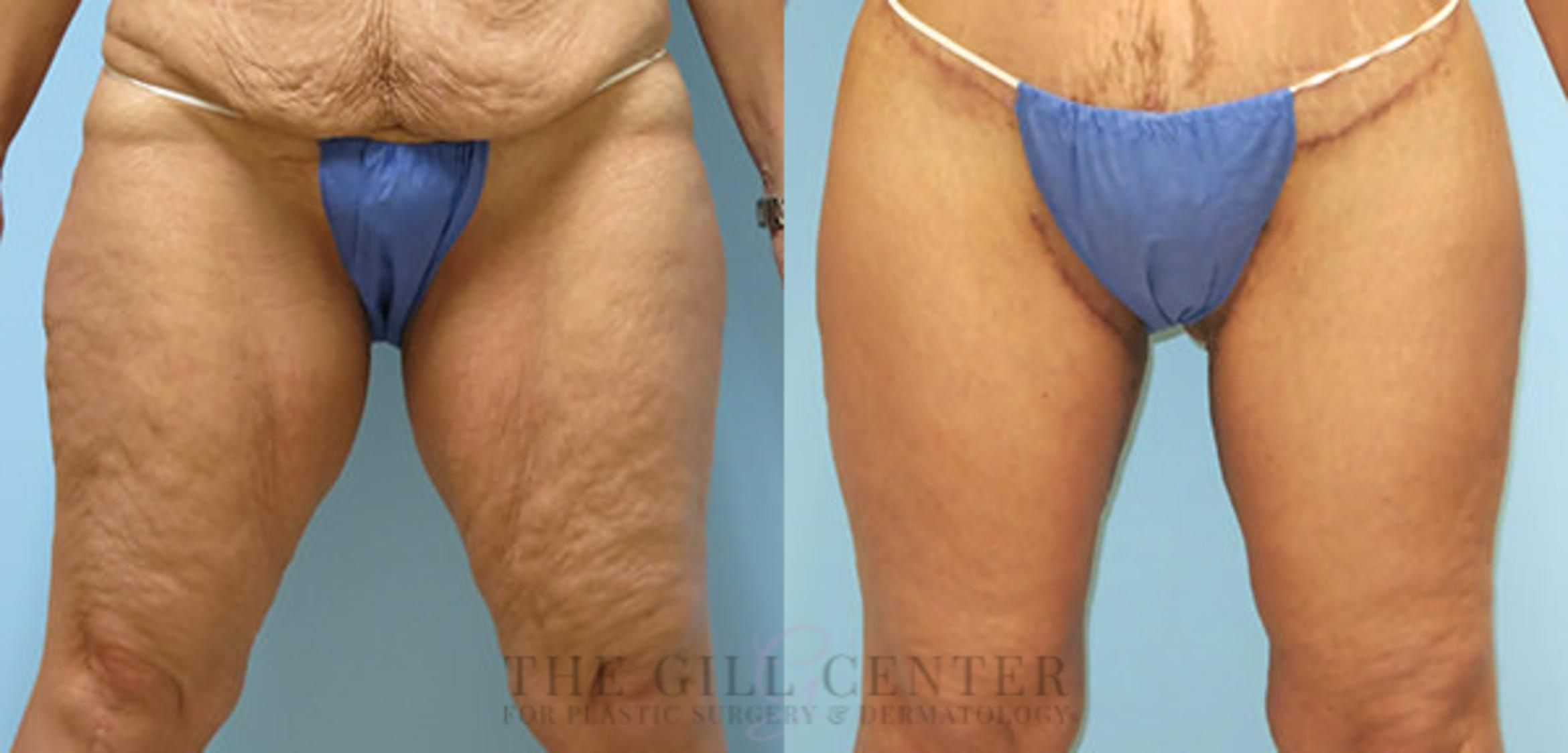 Thigh Lift Case 172 Before & After Front | Shenandoah, TX | The Gill Center for Plastic Surgery and Dermatology