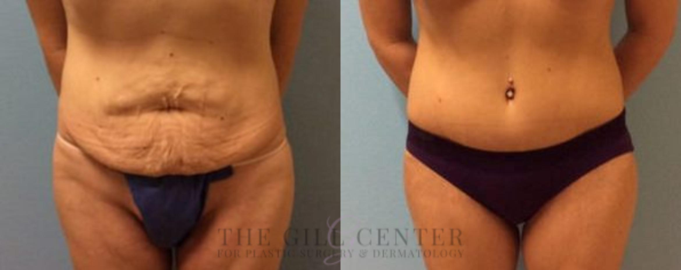 Tummy Tuck Case 190 Before & After Front | Shenandoah, TX | The Gill Center for Plastic Surgery and Dermatology