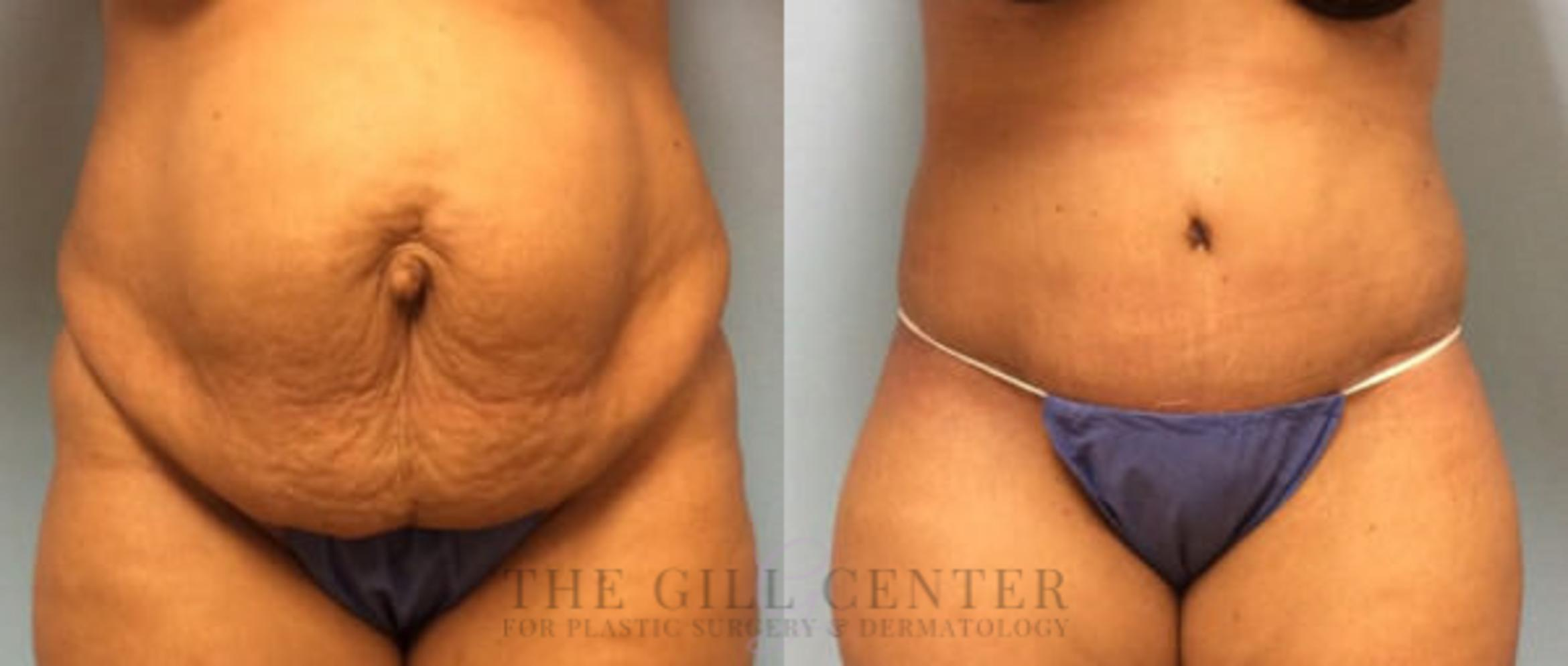 Tummy Tuck Case 196 Before & After Front | Shenandoah, TX | The Gill Center for Plastic Surgery and Dermatology