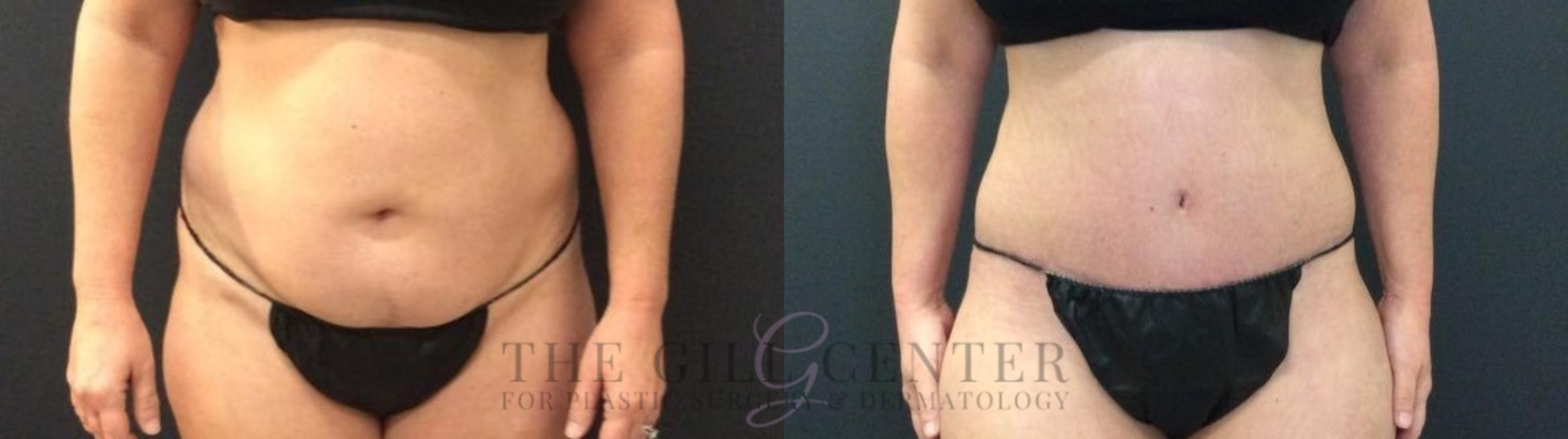 Tummy Tuck Case 424 Before & After Front | Shenandoah, TX | The Gill Center for Plastic Surgery and Dermatology