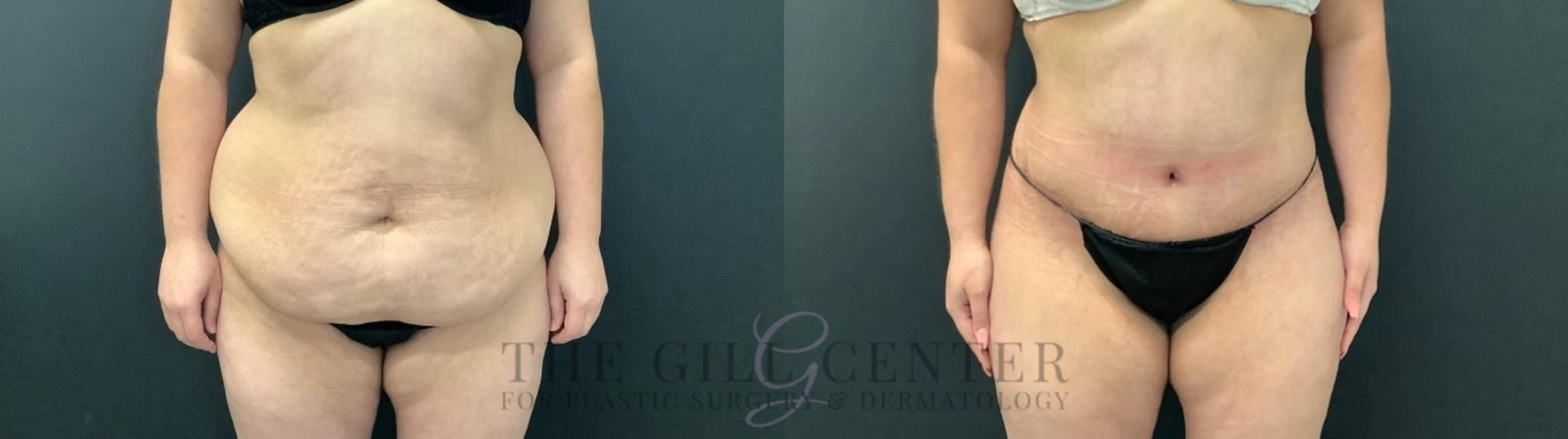 Tummy Tuck Case 468 Before & After Front | The Woodlands, TX | The Gill Center for Plastic Surgery and Dermatology